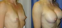 Breasts_Slideshow_f02.jpg