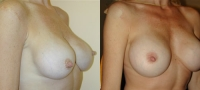 Breasts_Slideshow_f10.jpg