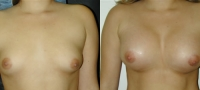 Breasts_Slideshow_f12.jpg