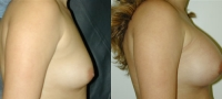 Breasts_Slideshow_f13.jpg