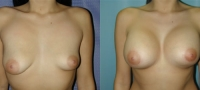 Breasts_Slideshow_f18.jpg