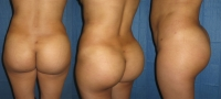 buttocks-case-study-10.jpg